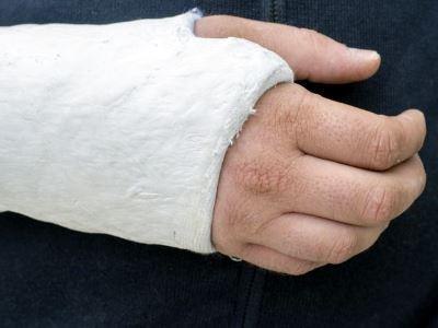 A kéz csonttörései