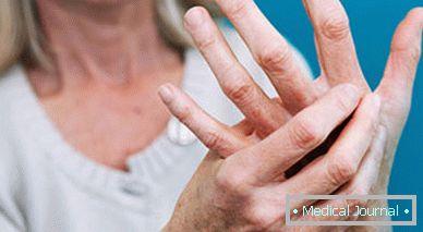 Hidegterápia: fürdőruhában fokon