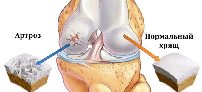 gonartrózis és a térd ízületi gyulladása)