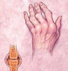 a lábak duzzanata ízületi betegségekkel