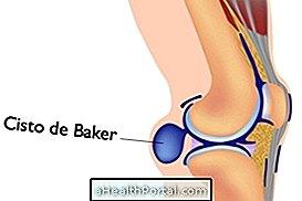 térdízületi pék ciszta kezelése fájdalom a kéz ízületeiben tapintáskor