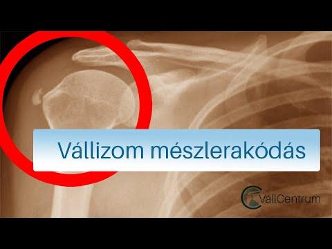 fájdalom és deformáció az ujjak ízületeiben reuma wiki