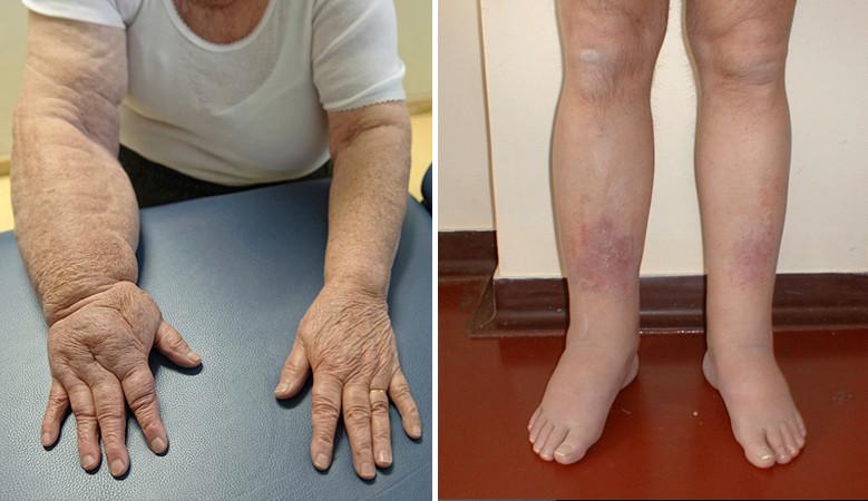 kezelni a kezek artrózisát