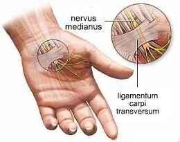 fájdalom a jobb kéz csuklójában