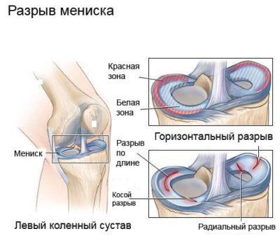 kórtörténet, deformáló térd artrózis