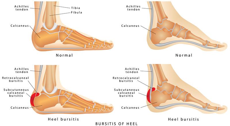 Térdízület gyógyító kezelés bursitis. Szimpatika főoldal