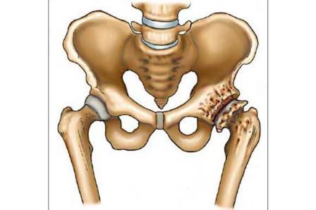 csípő neoarthrosis kezelés