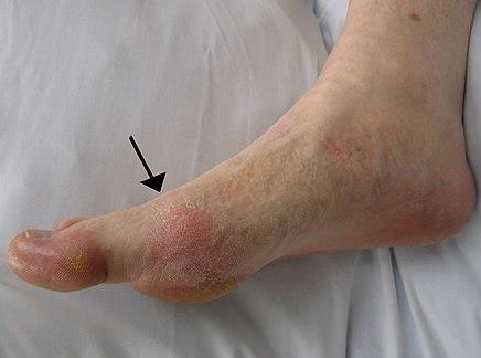 lábfej izületi gyulladás kezelése)