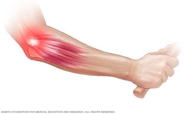fájdalom a könyökízületben artrózisos kezeléssel az ízületek gyógyulnak