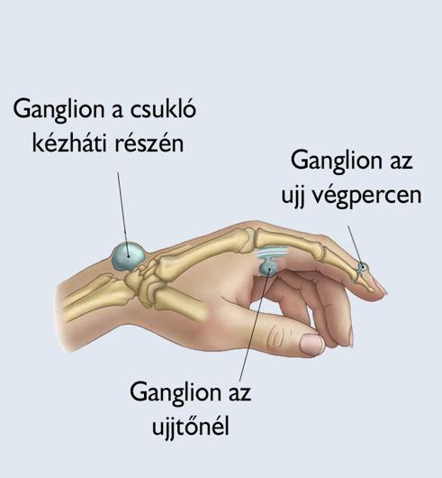 ízületi sérülések sprainokkal és inakkal