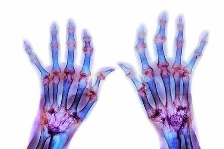 a lábízület kezelésének szinovitisz)