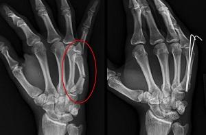 a bokszolás után fáj az ujjak ízületei
