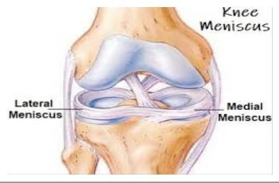 az ízületi sérülések kezelése)