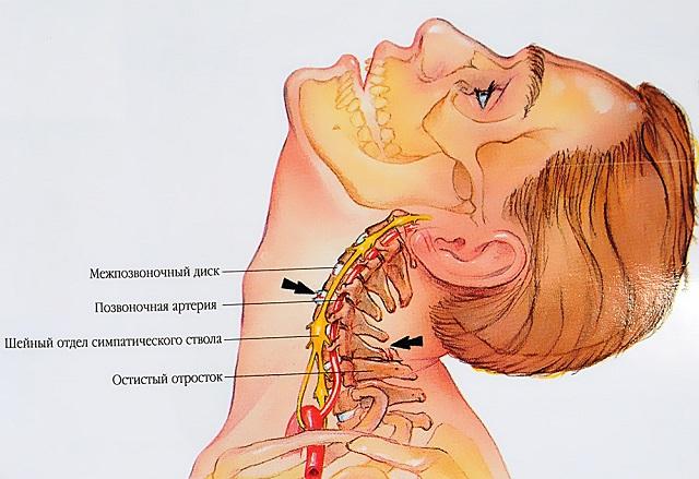 a vállízület izomrándulása hogyan kell kezelni térdfájdalom 2