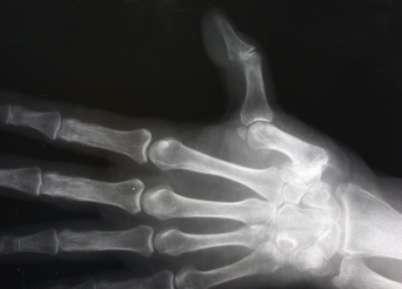 röntgen terápia az artrózis kezelésében