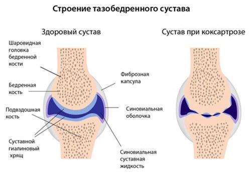 A csípő arthrosisának jelei. Diagnózis és kezelés