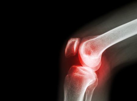 ízületi gyulladás és artrózis klinika