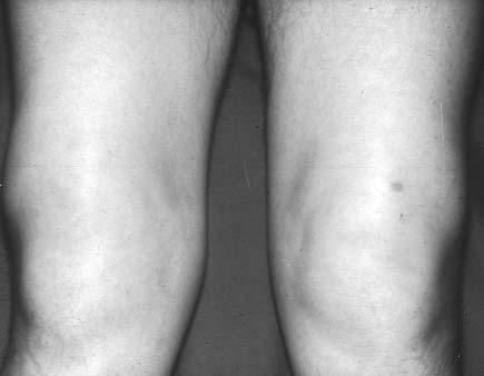 miért a térd artrózisa)