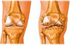 rizzsel kezelhető artrózis