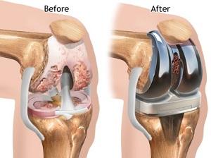 artrózis kezelése és torna)