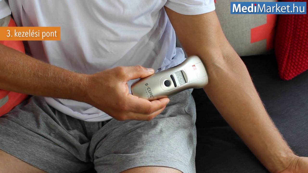 boka artrózis lézeres kezelése)