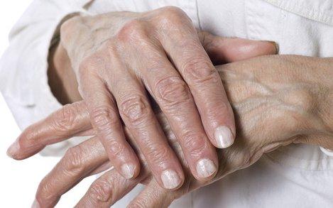 a kéz kenőcsének ízületi gyulladása)