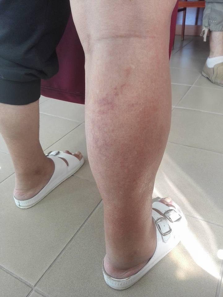 Zúzódások, traumás sérülések