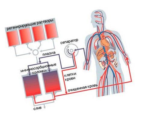 diffúz kötőszöveti betegség patogenezise gélízületű kondroitin glükózaminnal