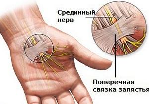 Cukorbetegség-et jelezhet a fájó ízület - sebinko.hu