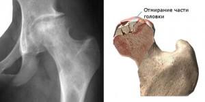 Mi a csípőízület blokádja és hogyan történik ez? - Láb