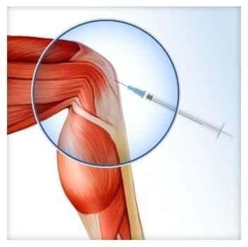 artrózis intraartikuláris injekció kezelése deformir vállízület