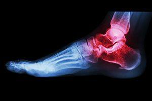 belső boka alatti fájdalom