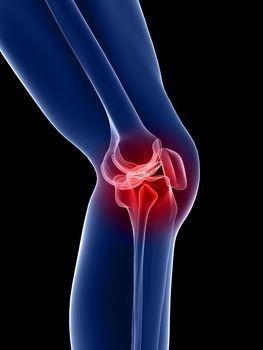 a térdízület duzzadt lábának ízületi gyulladása fájdalom és gyengeség a könyökízületekben