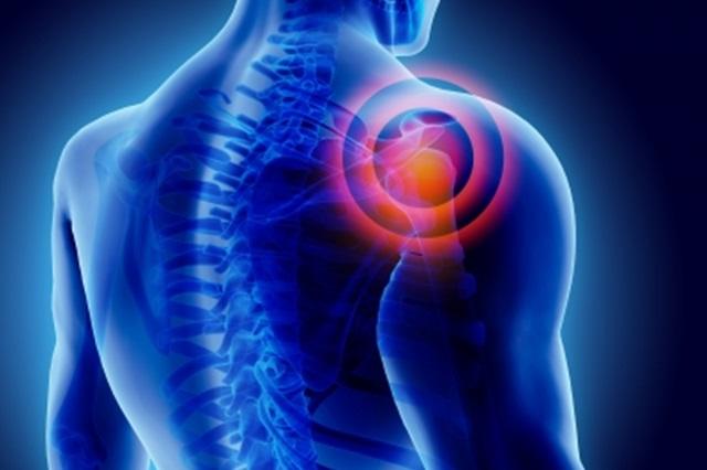 a vállízület tünetei és kezelési fóruma