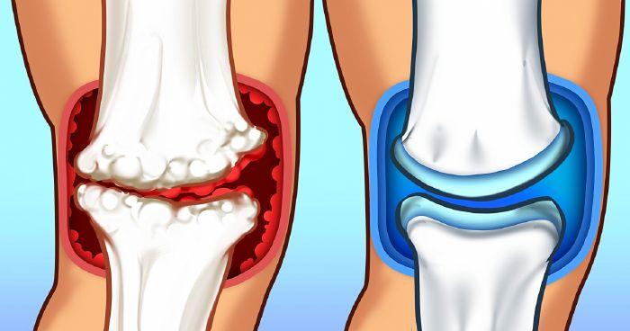 az ízület fájdalmának és gyulladásának enyhítése