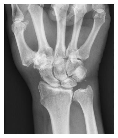 scaphoid scaphoid artrosis