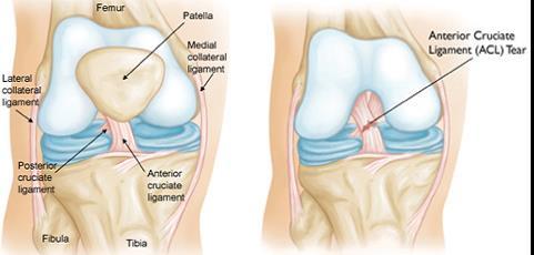 miért fájdalmasak a bokaízületek