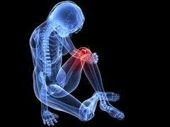 hogyan lehet az ízületi fájdalmat az artrózissal kiküszöbölni)
