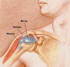 a bal vállízület bursitisz kezelése gyógyszerek, amelyek javítják az ízület anyagcseréjét