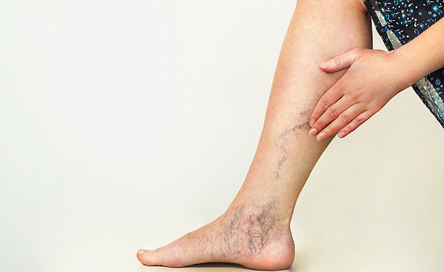 a láb injekcióinak fájdalma)