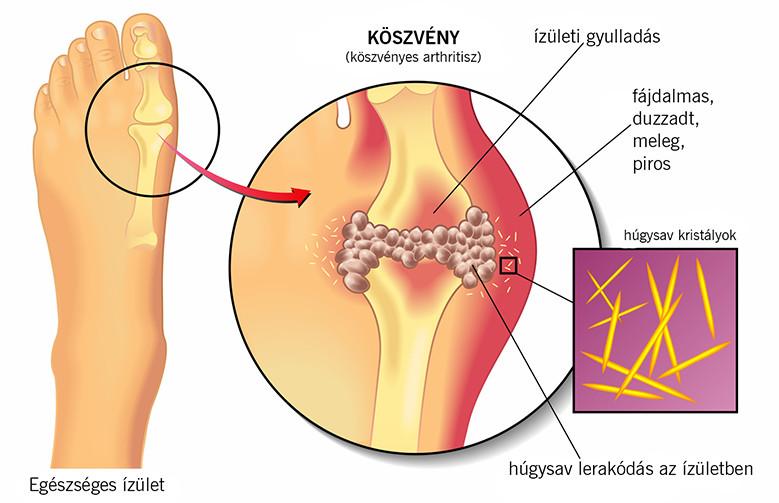 ízületek típusú ízületi sérülések)