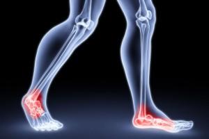 mi a teendő, ha fáj a lábízületek voltaren emulgel ízületi fájdalmakhoz
