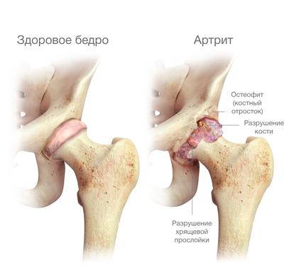 hatékony módszerek a csípőízület artrózisának kezelésére
