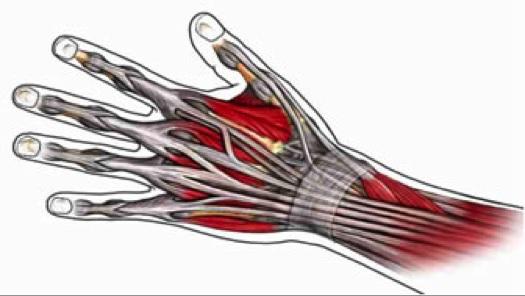 a térd artrózisa 3 fokos tünetek)