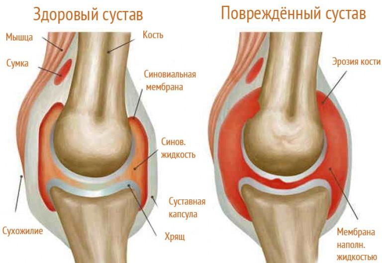 bokaízület duzzanatának kezelése)