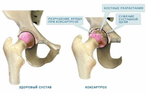 mi a csípőízület kezelésének coxarthrosis