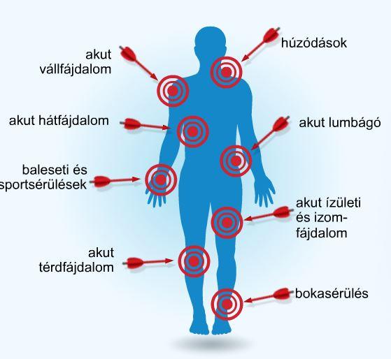 ízületek és izmok reumatikus gyógyszerei