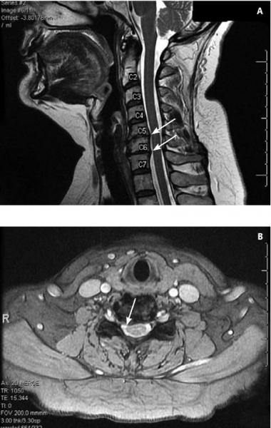 gázinjekciós kezelés osteoarthritis esetén ízületi elektromágneses kezelés