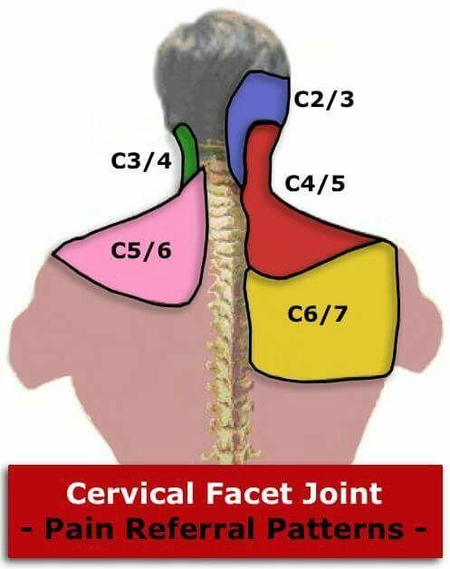 ízületi gyulladás hogyan kezelhető vélemények ahol a csípő dysplasia kezelésére kerül sor