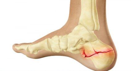 hamis ízületi láb kezelés